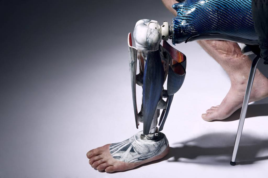 52.6-The Alternative limb project-Anatomical leg by Omkaar Kotedia high res